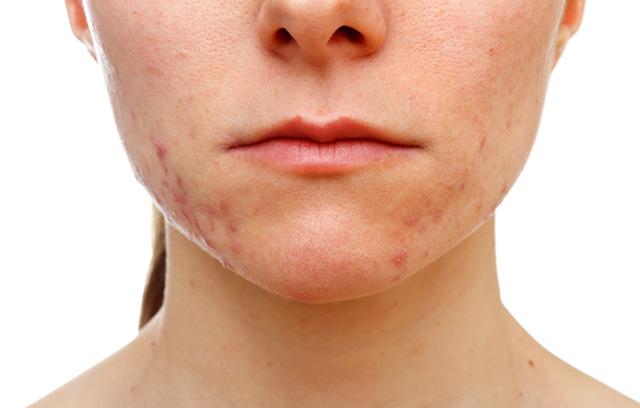רואקוטן-אקנה-acne-פרופאשן