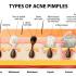 רואקוטן-אקנה-acne
